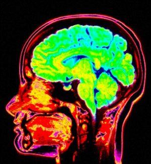 Psychopaths-brain_crop